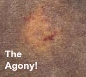 carpet agony